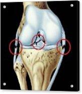 Knee Ligament Injuries Acrylic Print