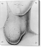 Medicine: Goiter, 1822 Acrylic Print
