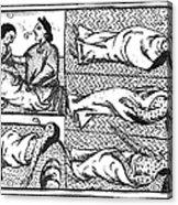Mexico: Smallpox Epidemic Acrylic Print