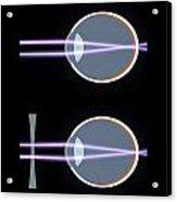Myopia Or Short Sightedness Poster Acrylic Print