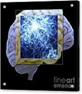 Neuron And Brain Acrylic Print