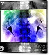 Normal Ivp Acrylic Print