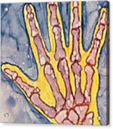 Opposing Thumb Acrylic Print