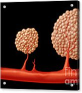 Progression Of Angiogenesis Acrylic Print