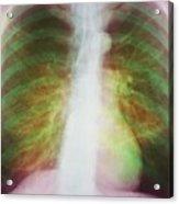 Pulmonary Emphysema Acrylic Print