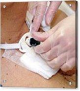 Replacing Tracheostomy Tube Acrylic Print