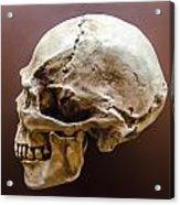 Side Profile View Of Human Skull   Acrylic Print