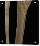 Tibia And Fibula Bones Acrylic Print