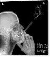 X-ray Of A Man Smoking A Cigarette  Acrylic Print