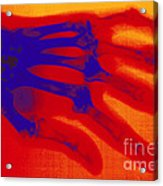 X-ray Of Hand With Rheumatoid Arthritis Acrylic Print