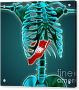 X-ray View Of Human Skeleton With Liver Acrylic Print by Stocktrek Images