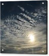 005 When Feeling Down  Pick Your Head Up To The Skies Series Acrylic Print