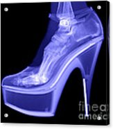 An X-ray Of A Foot In A High Heel Shoe Acrylic Print