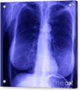 Chest X-ray Of Female Acrylic Print