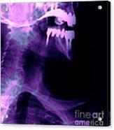 Dental Work Acrylic Print