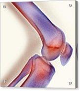 Healthy Knee, X-ray Acrylic Print