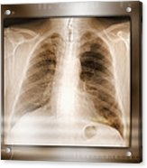 Heart And Lungs, X-ray Acrylic Print