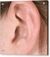 Human Ear Acrylic Print