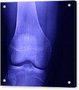 Knee X-ray Acrylic Print