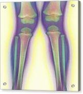 Knock-knee, X-ray Acrylic Print