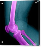 Lateral X-ray Of The Knee Acrylic Print