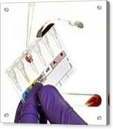 Manual Rhesus Test On Blood Acrylic Print