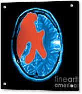 Mri Shows Near Total Hemispherectomy Acrylic Print by Medical Body Scans