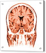 Normal Coronal Mri Of The Brain Acrylic Print by Medical Body Scans
