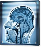 Normal Head And Brain, Mri Scan Acrylic Print