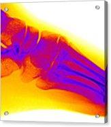 Normal Human Foot Acrylic Print
