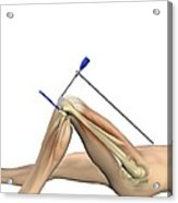Partial Knee Replacement, Artwork Acrylic Print by D & L Graphics