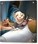 Slipped Disc Microendoscopy Surgery Acrylic Print