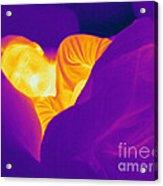 Thermogram Of A Sleeping Girl Acrylic Print