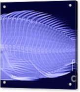 X-ray Of A Flame Hawkfish Acrylic Print