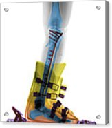 X-ray Of Broken Bones In Ski Boot Acrylic Print