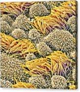 Fallopian Tube, Sem Acrylic Print