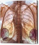 Breast Implants, X-ray Acrylic Print