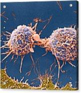 Coloured Sem Of Cervical Cancer Cells Dividing Acrylic Print