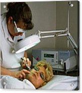 Cosmetic Laser Surgery Acrylic Print