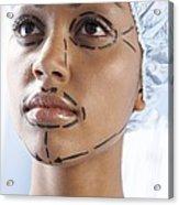 Facelift Surgery Markings Acrylic Print by Adam Gault