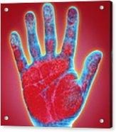 Hand Acrylic Print