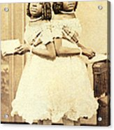 2 Headed Girl Millie-chrissie Acrylic Print by Photo Researchers