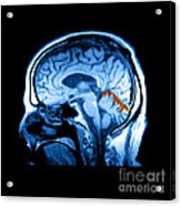 Mri Of Alcoholism Related Vermian Acrylic Print