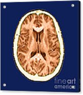 Normal Cross Sectional Mri Of The Brain Acrylic Print