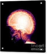 Pagets Disease Acrylic Print