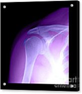 Tendinitis Acrylic Print by Medical Body Scans