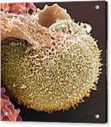 Urine Infection, Sem Acrylic Print