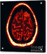 Mri Of Normal Brain Acrylic Print