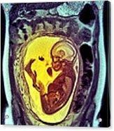 9 Month Foetus, Mri Scan Acrylic Print