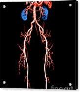 Ct Angiogram Of Abdomen And Legs Acrylic Print